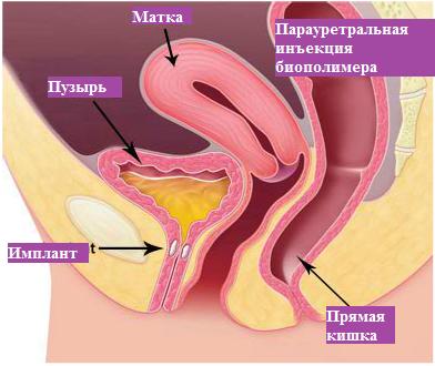 oralniy-seks-pri-parauretralnoy-kiste