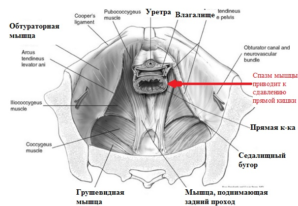 Спазм мышц влагалища