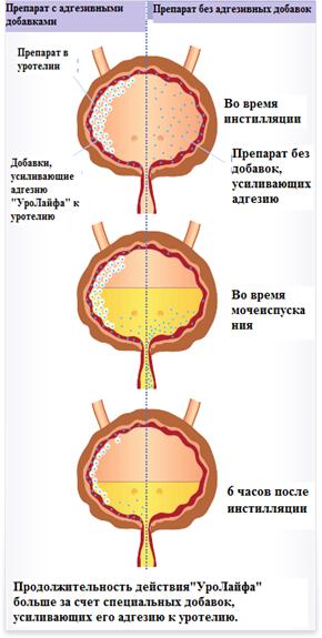 Уролайф Клиника Урогинекологии и нейроурологии
